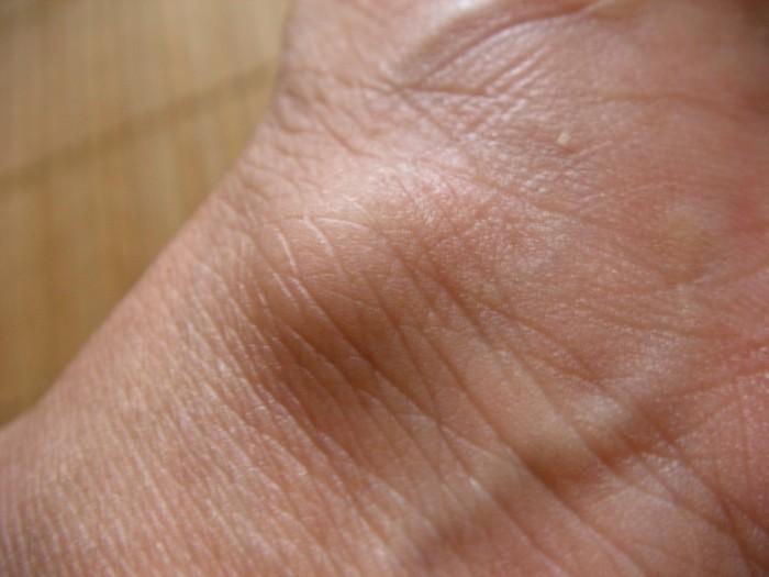ガングリオンは中に黄色いゼリー状の物質の詰まった腫瘤だという。典型的なものは手首の内側に生じるガングリオンで、これは手首 の関節を包むふくろに繋がっている。