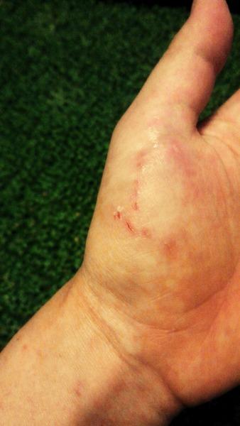 手の咬傷2