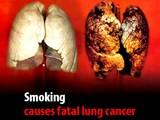 20080630-ヨーロッパ・タバコの有害性への警告-010