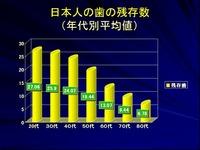 20160702_日本人の年代別歯の残存数_210