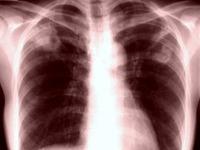 20160702_肺臓_肺_レントゲン_X線__飛沫核感染_124