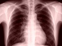 20160702_肺臓_肺_レントゲン_X線__飛沫核感染_112
