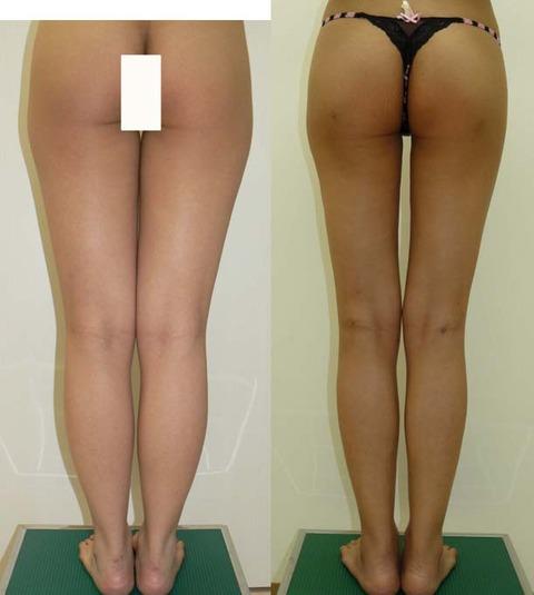 脂肪吸引足全体背後