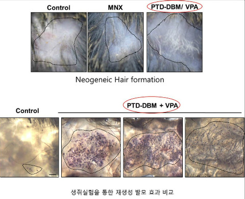 【韓国】ハゲの治療薬を韓国人が開発…ネットではノーベル賞を期待するも「商用化しないと意味ない」と怒るハゲも