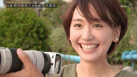 【画像】女の子が笑った時に歯茎を見せる笑顔、ガミースマイルが好きwwwww