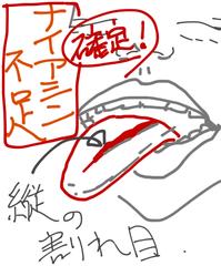 舌の割れ目