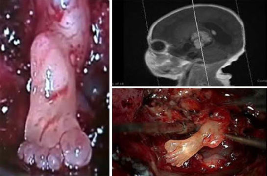 胎児 用 奇形 種 奇形腫 teratomas 未熟奇形腫