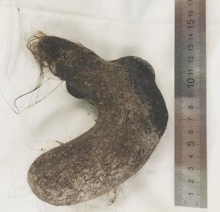 【異食】腹痛を訴える12歳少女 検査の結果、胃袋からとんでもない物が発見される