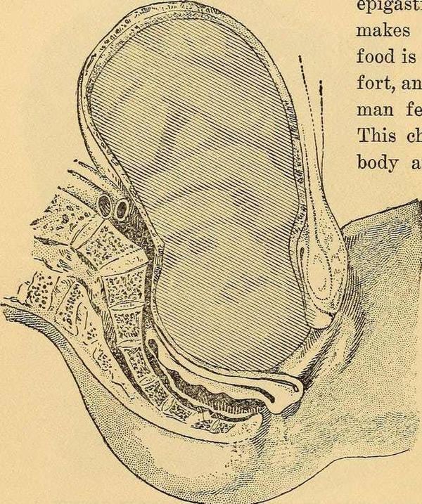 fetal-destructors-photo-u1
