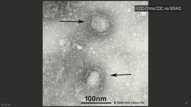 【速報】新型ウイルス 福岡市で60代男性の感染確認 九州で初