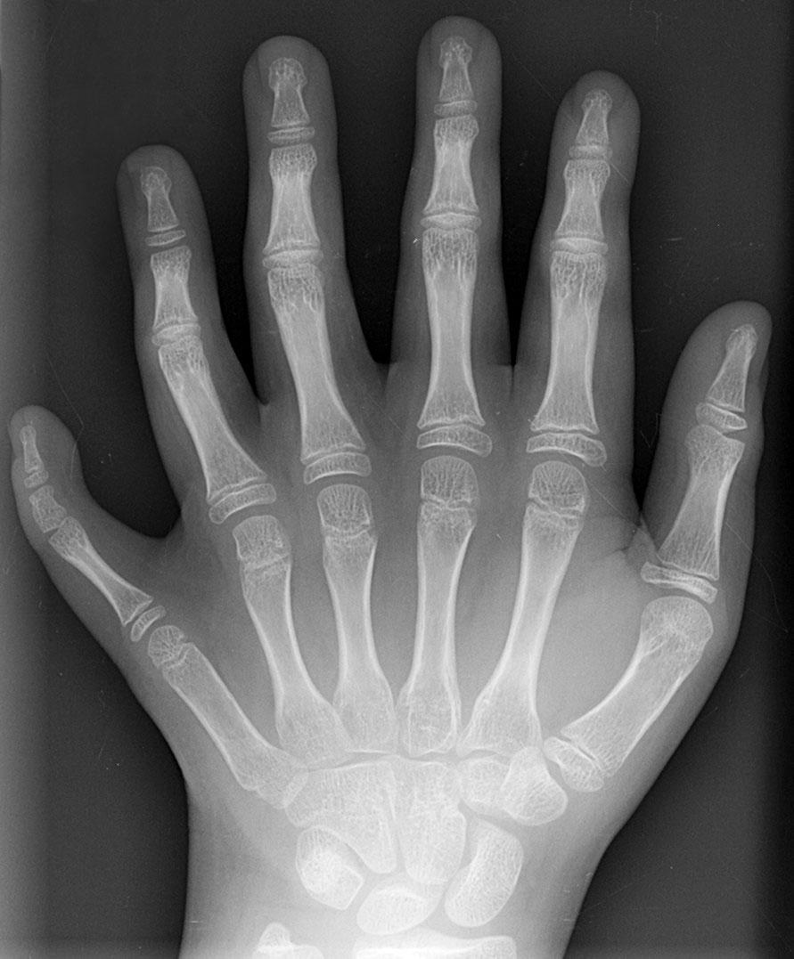 多指症の画像 p1_13