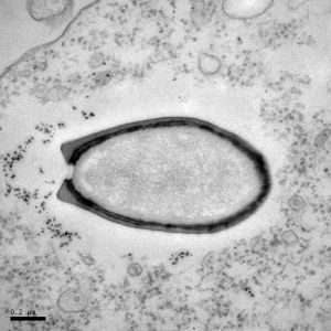 史上最大のウイルスと未知の遺伝子の発見:科学ニュースの森