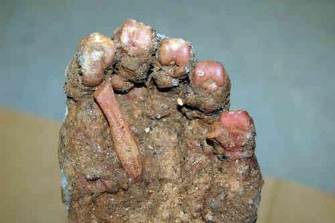 バージニア州ビッグフット足写真 こちらバージニア州で見つかった謎の足。当初殺人事件かと捜査され調