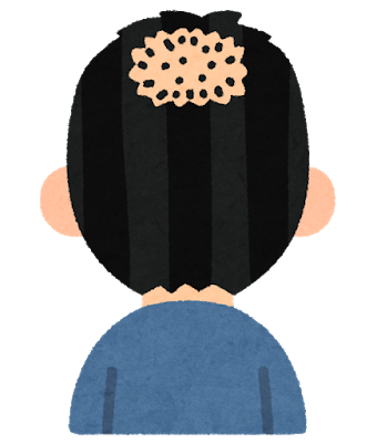 【緊急】今後20年以内に画期的な薄毛治療って開発されるんか?