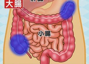 大腸の動きが悪い