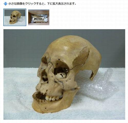 明治 実物 人骨 標本 骨格 頭蓋骨 研究 医学2