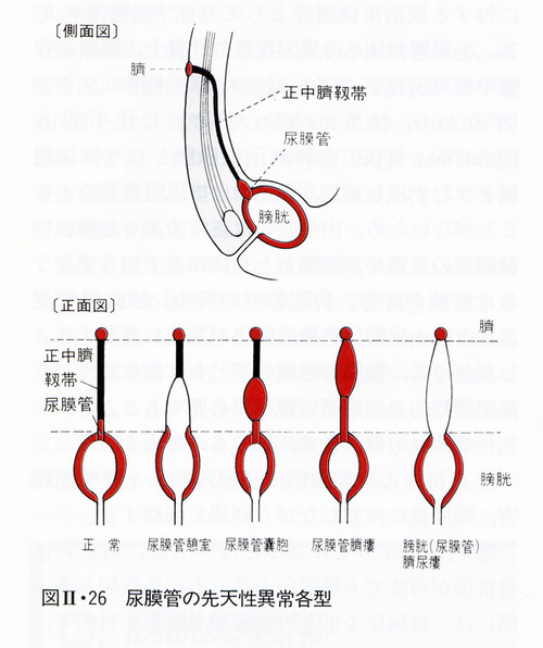 尿膜管分類