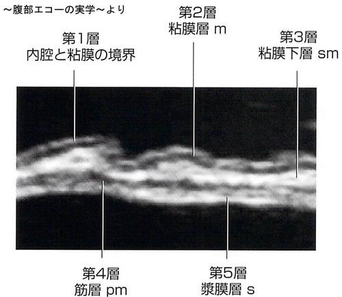 胃の構造2