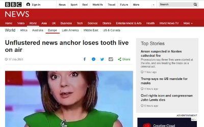 ニュース アナウンサー 歯に関連した画像-02