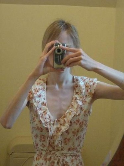 anorexic_girls_16