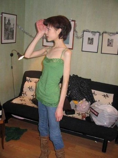 anorexic_girls_18