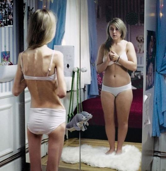 anorexic_girls_25