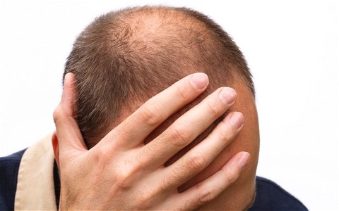 bald_2526587b