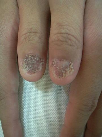 img-nailproblem1