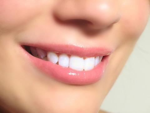 white-teeth-1024x768