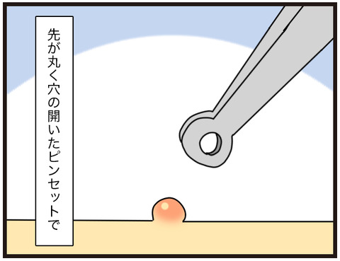 水いぼ治療3