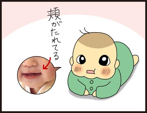 子供の頬の柔らかさ比較
