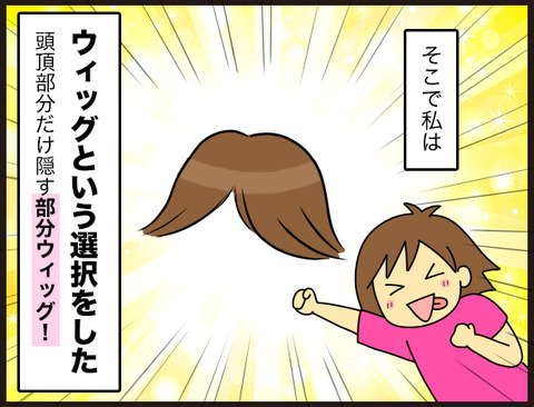 【髪】薄毛にウィッグという選択5