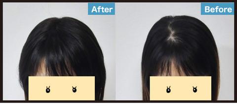 【髪】薄毛に部分ウィッグという選択12