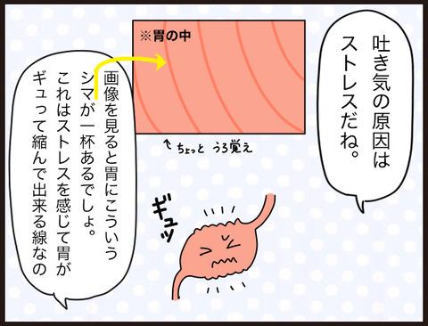 初めての胃カメラ体験記(結果)2