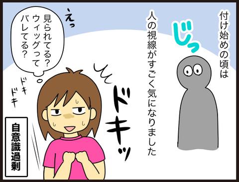 【髪】部分ウィッグってどんな感じ?2