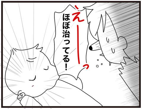 赤ちゃんの治癒力4