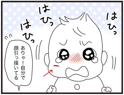 赤ちゃんの治癒力2