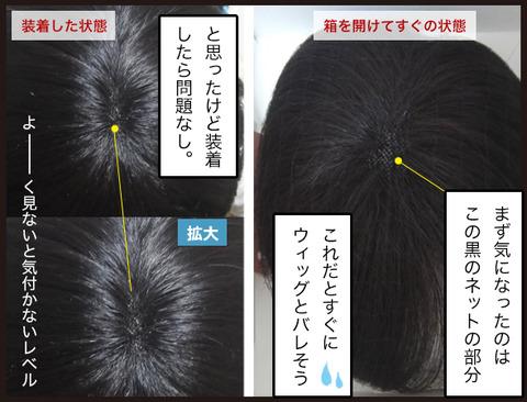 【髪】薄毛に部分ウィッグという選択9