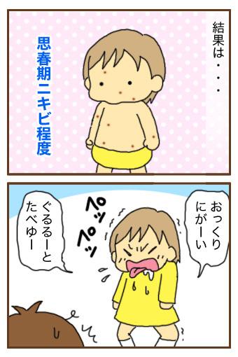 [漫画]ダンナ様は安月給-水疱瘡その後