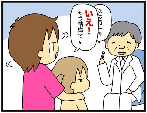 水いぼ治療6
