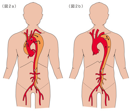 mhp_stent_aortic02