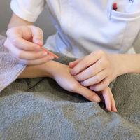 鍼の施術シーン