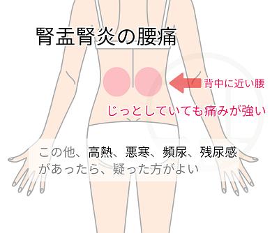 腎盂腎炎の腰痛