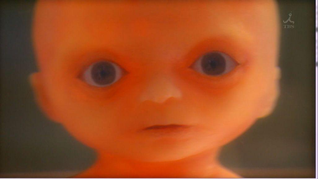 胎児 用 奇形 種 胎児 用 奇形 種 画像