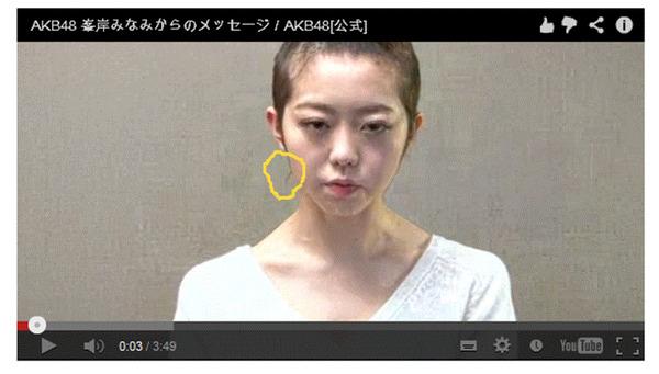 AKB48峯岸みなみ丸刈り謝罪!!後れ毛出てますけど?(`∀´) (-ι_- )