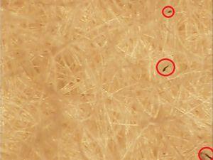 A-2(x84)インド(赤丸付ー比較1)