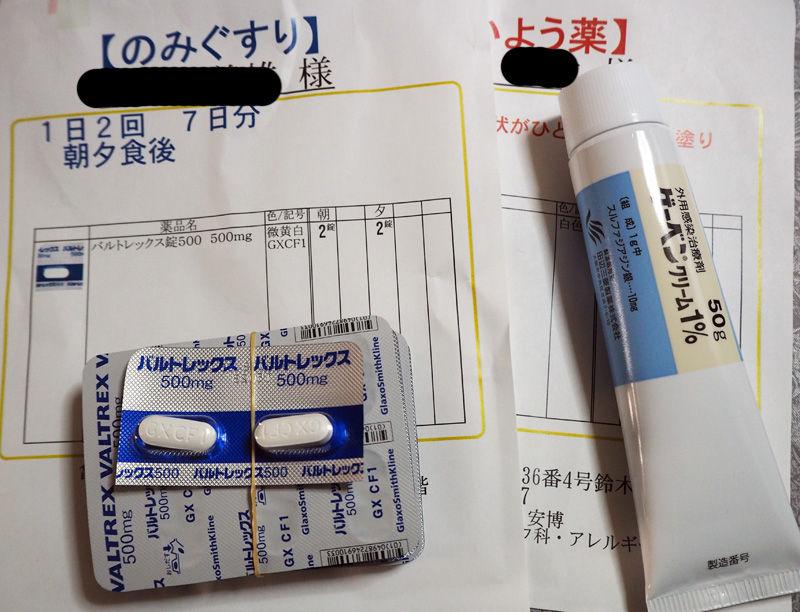 帯状 疱疹 薬