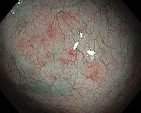 NBI_舌裏血管像