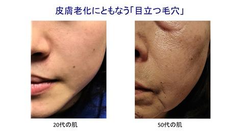 皮膚老化・目立つ毛穴