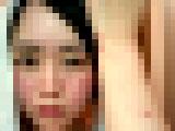 【画像】 美女ユーチューバー、謎の病気で顔がとんでもないことに・・ 投稿画像に衝撃走る
